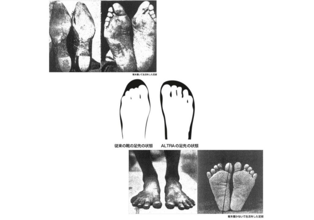 爪先の細い靴を履き続けた外反母趾の足と、靴を履かずに過ごした健康的な足。